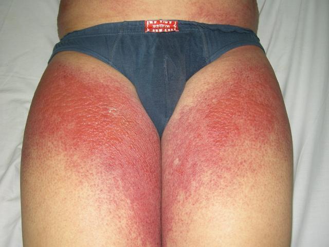 аллергия на солнце что делать как лечить