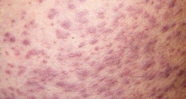 аллергия на лекарства фото