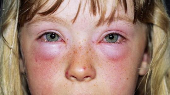 детская аллергия на лекарства