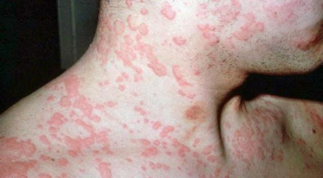 аллергия от глистов симптомы у человека