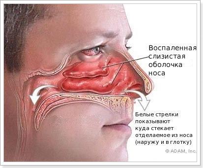 Хронический насморк