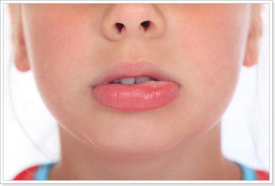 отека губ при аллергий
