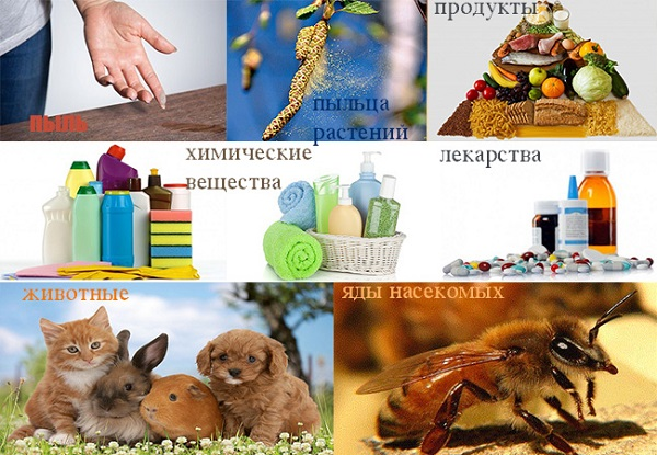 allergia-u-rebenka1