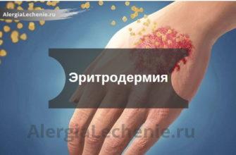 Эритродермия