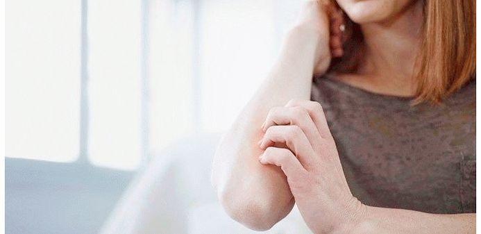 Лечение эритродермии