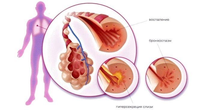 Лечение атопической бронхиальной астмы