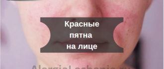 Красные пятна на лице