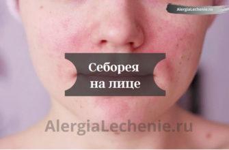 Себорея на лице